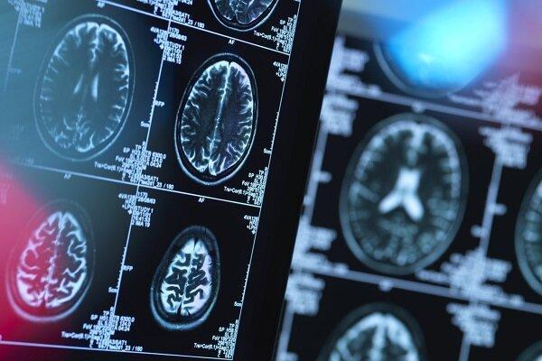 کرونا ماده خاکستری مغز را کاهش می دهد